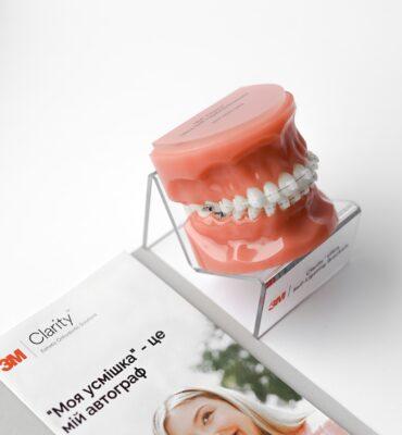 Брекети Clarity Ultra Self-Ligating – естетичне рішення в ортодонтії